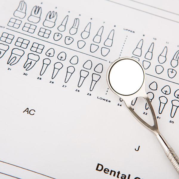 成人の歯科治療