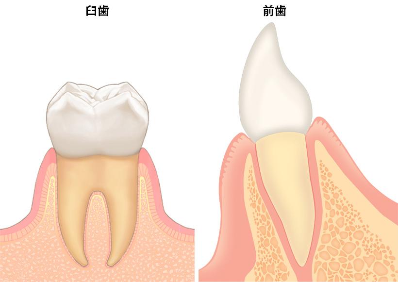 歯周病その1