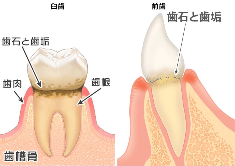 歯周病その2
