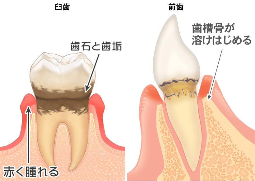 歯周病その3