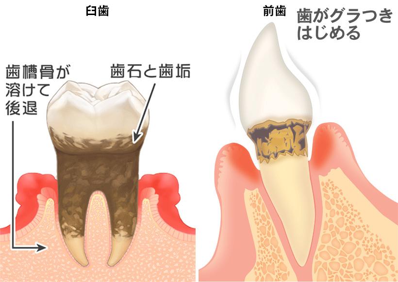 歯周病その4