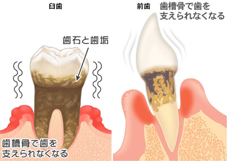 歯周病その5