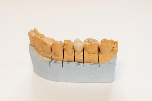 差し歯、インプラント
