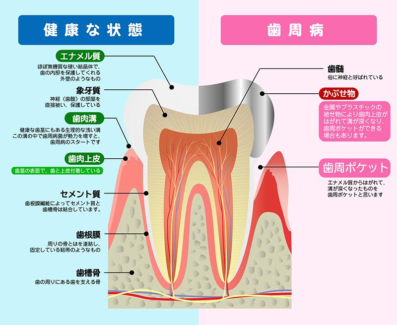 歯周病の原因と歯のメカニズム